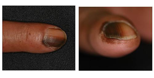また、足の爪に黒っぽく丸い形の斑点が出来る場合がありますが、ほとんどの場合は、爪に無理な力が加わったために起こった出血斑です。
